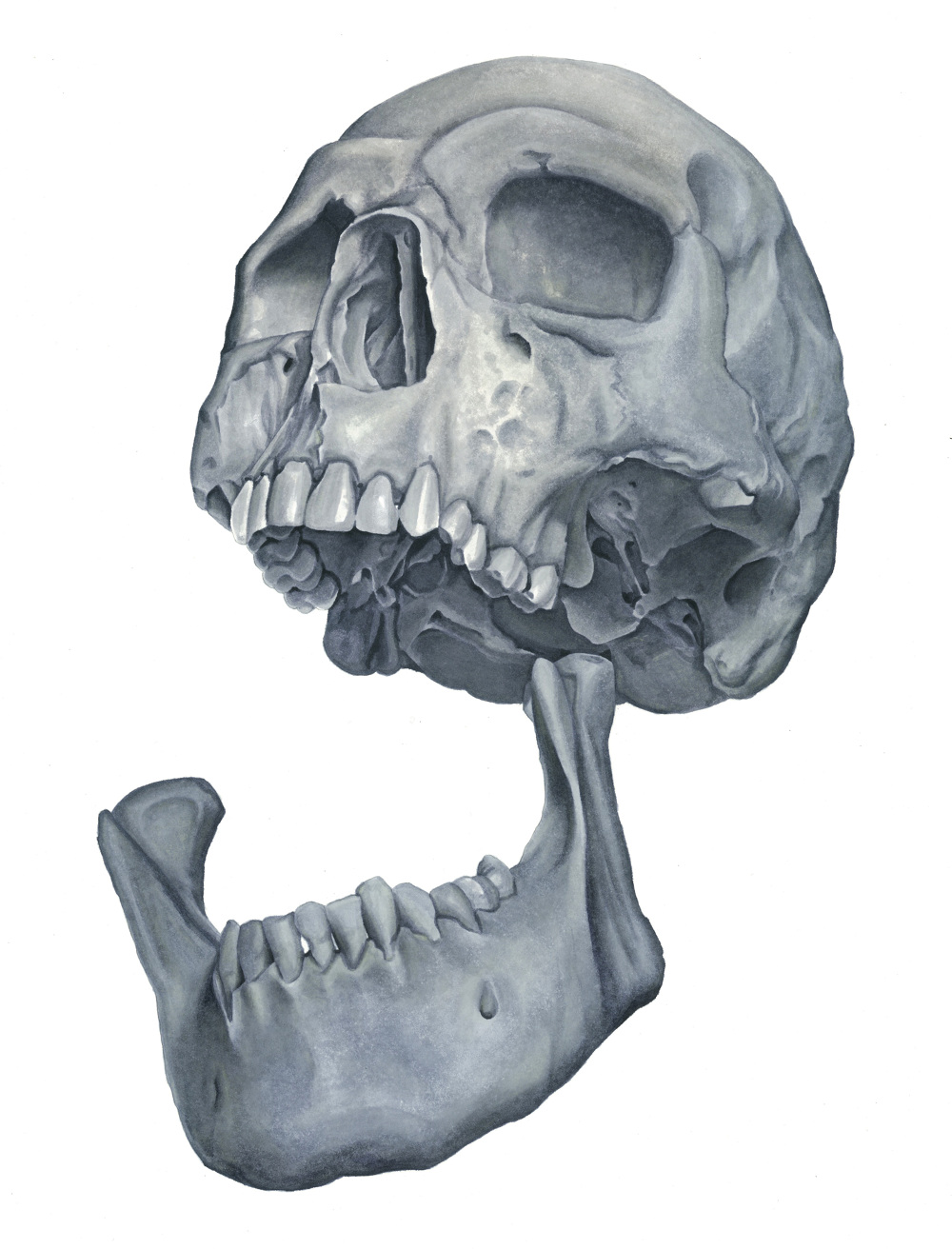 an analysis of skull and jaw Ct scans of the skull and other jaw fragments were made in vienna and those of the frontal fragments at penn state university the two fragments have been reunited with the skull in silico , and broken parts from one side of the skull have been replaced virtually.